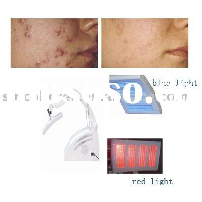 photodynamic therapy PDT