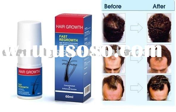 Let scalp hair loss disappear in 7 days