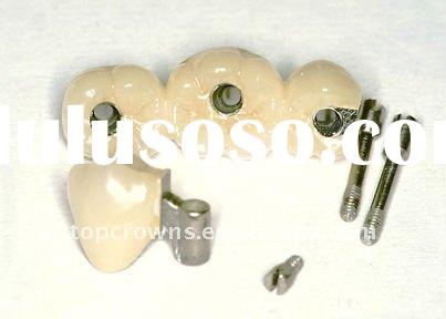 Dental Implants Crown and bridge products
