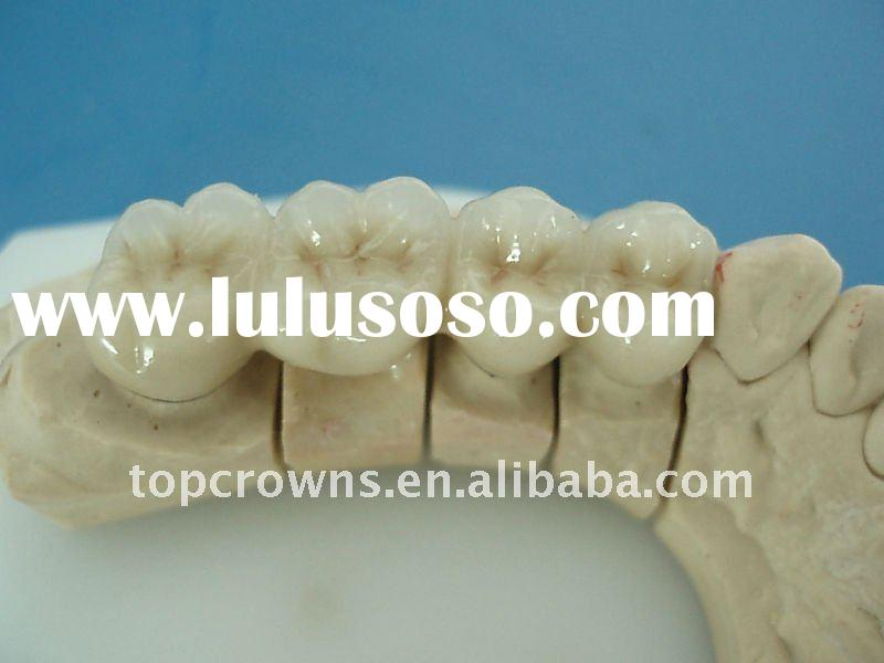 Fixed prosthesis PFM Porcelain fused to metal crown Cobalt and Chrome alloy
