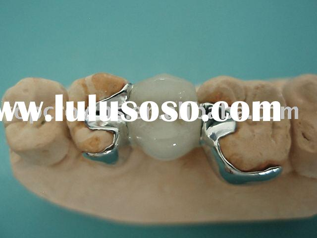 ceramic porcelain PFM Dental Crowns/CCM with two metal wings