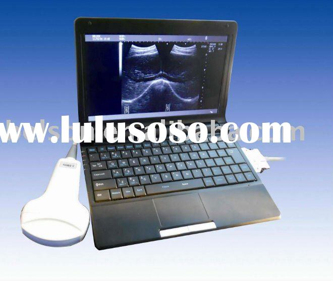 Laptop/Notebook/Mobile Full Digital Ultrasound Scanner BELSON 3000M TFT10.1 with Convex+Linear+Trans