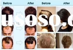 Advanced formula hair loss treatment effective to male and female 085